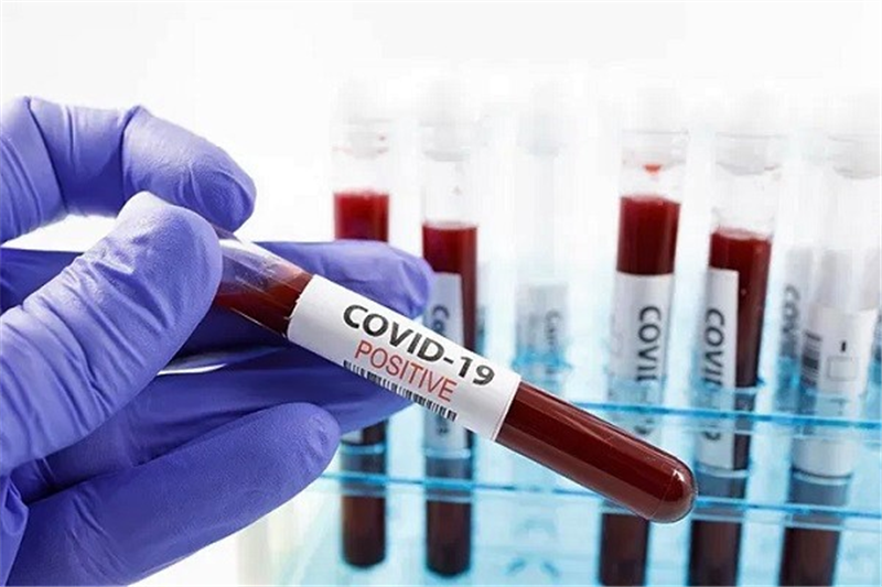 Public Labs Directed Not To Charge Sick Patients For Covid-19 Tests
